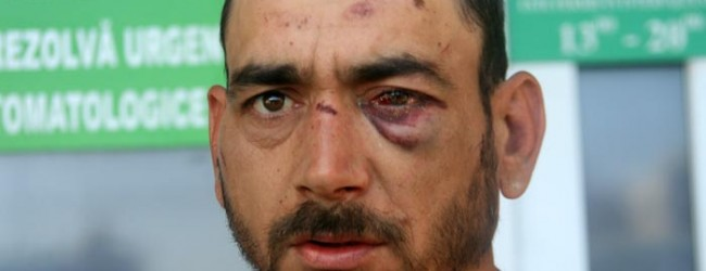 După ce au fost anchetaţi pentru ultraj la secţia de Poliţie din Gătaia, au ajuns cu feţele sparte şi plini de răni la spital