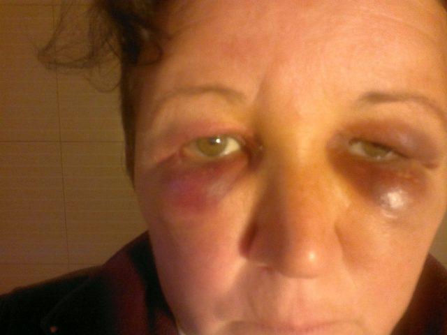 femeie batuta casa devastata (7)