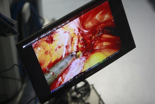 operatie robot06_resize