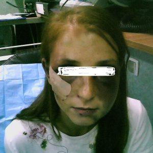 victima 2